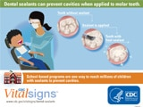 Read a blog post about the October 2016 edition of CDC Vital Signs, on the effectiveness of dental sealant programs.