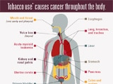 Read a blog post about the latest CDC Vital Signs on cancer and tobacco use.