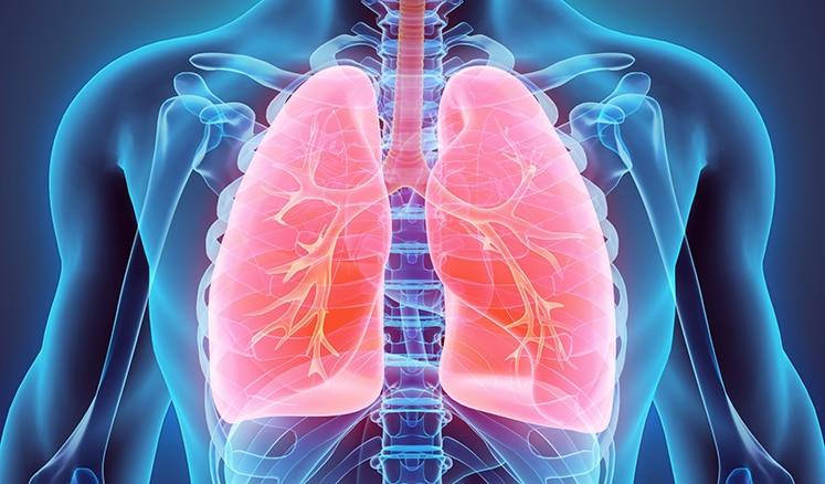 Image lung disease