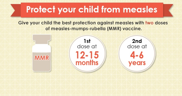 Protect your child from measles. Give your child the best protection against measles with two doses of measles-mumps-rubella (MMR) vaccine. MMR. 1st dose at 12-15 months. 2nd dose at 4-6 years.